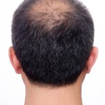 Male pattern baldness alopecia acupuncture treatment