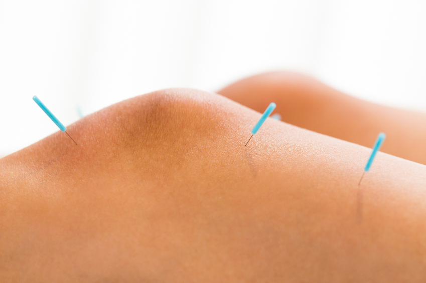 Image result for Working of acupuncture for knee pain