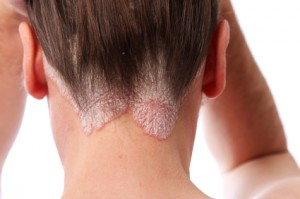 psoriasis on the scalp and hairline
