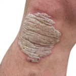 Psoriasis on a man's knee