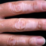 Vitiligo affecting the hand and fingers