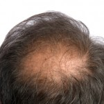 pattern baldness alopecia hair loss
