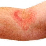 Eczema dermatitis on inner elbow