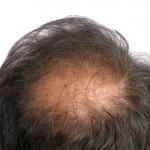 pattern baldness alopecia hair loss